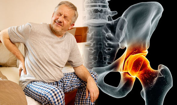Prostate cancer symptoms: This sign in the hips could signal the deadly disease