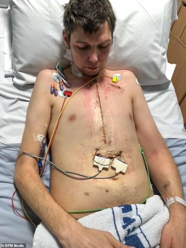 Post-surgery: James Walton, from Birmingham, pictured shortly after his dramatic transplant