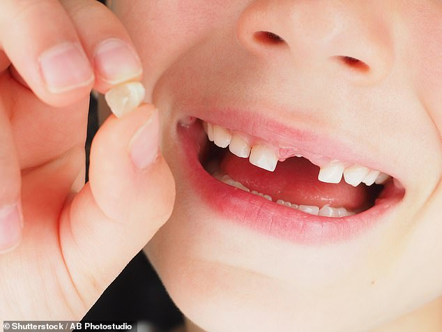 Dr Erin Dunn, a psychiatrist at Massachusetts General Hospital, examined lost milk teeth from six-year-olds, and found those with thinner enamel were more likely to have issues