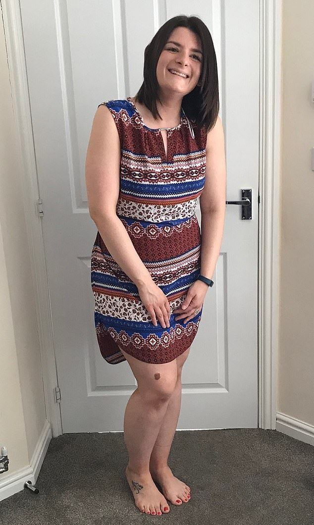 Shannon Hutchinson had varicose veins so painful she broke down and cried to her GP for treatment - but claims she was told only to come back when they had developed into open sores. Pictured after treatment she paid for privately