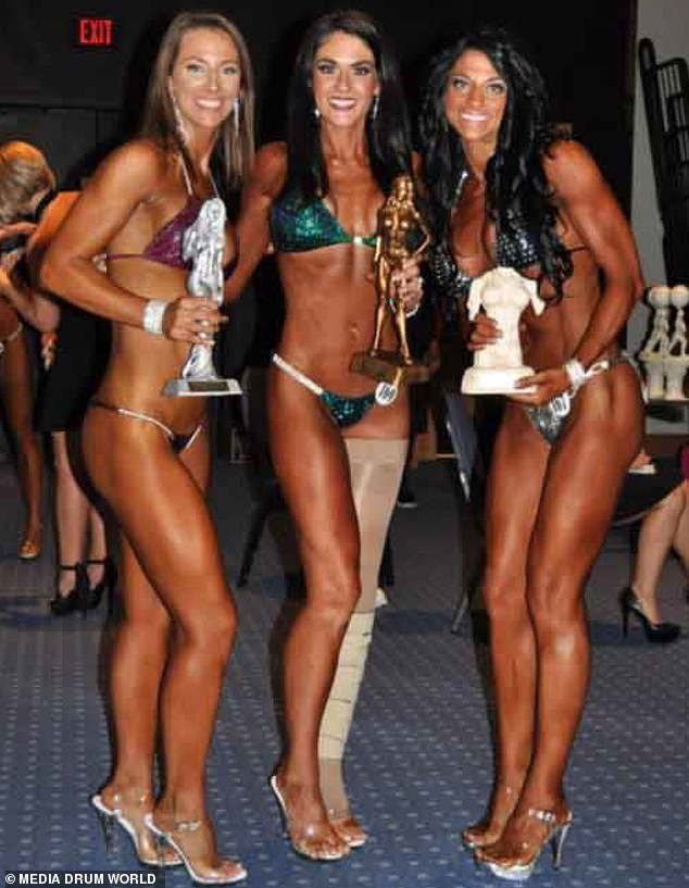 Alison Mahoney taking part in a bodybuilding competition with her compression band on