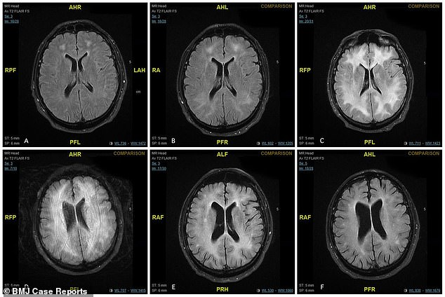 MRI scans released by the man