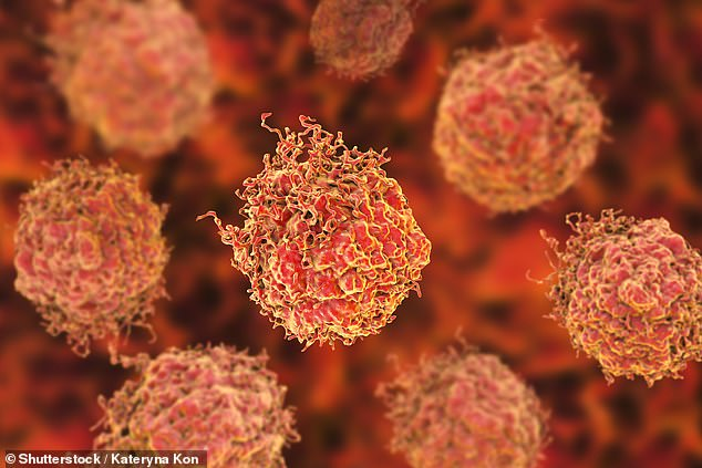Prostate cancer affects between 40,000 and 50,000 men in the UK each year and scientists say they may have found a way to prolong survival in those who have an incurable form of the disease (stock image of prostate cancer cells)