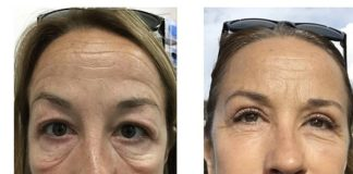 Kimberly James, 51, from Essex, pictured left before the procedure and right after, describes the results of her treatment as